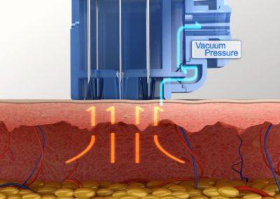 uruchomienie-systemu-vacuum1